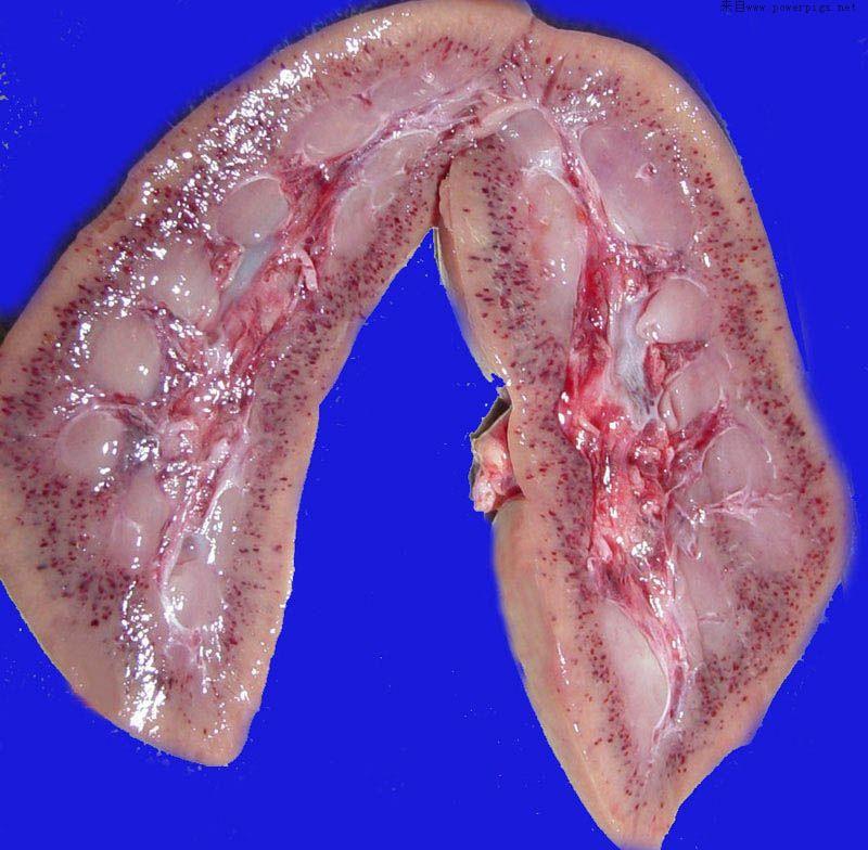 肾贫血性梗死镜下特点-【慢性型猪瘟】肾脏切面皮质、髓质严重出血-猪瘟 急性猪瘟,慢性猪