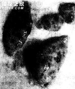 猪卵巢囊肿 (1)