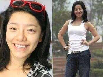 快女冠军江映蓉整容失败,网友称